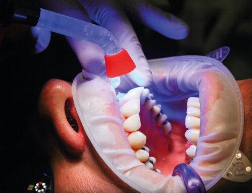 Esterilización y desinfección con luz ultravioleta C